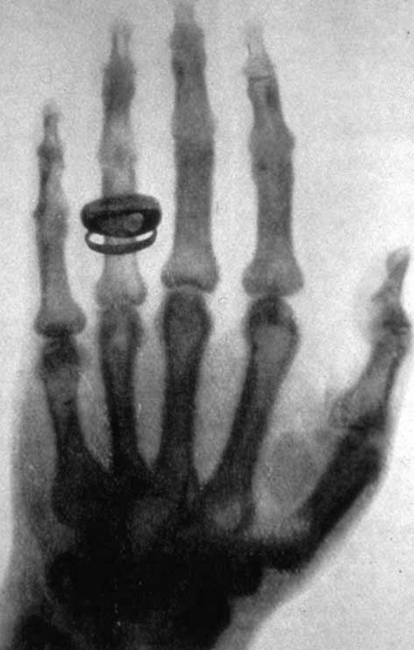 X ray by Wilhelm Ro  ntgen of Albert von Ko  lliker s hand   18960123 02